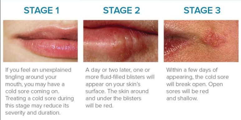 Cold Sores Causes Symptoms Prevention Amp Treatment