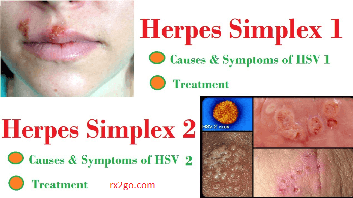 how to treat herpes simplex