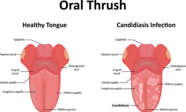 Oral Thrush: Causes, Symptoms & Treatment Information
