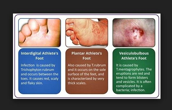 Athlete's Foot: Symptoms, Causes, Treatment & Prevention ...